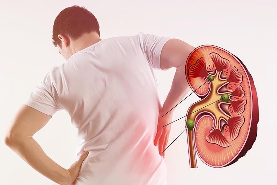Đau lưng ngay vị trí phía dưới khung xương sườn có thể là dấu hiệu của bệnh thận