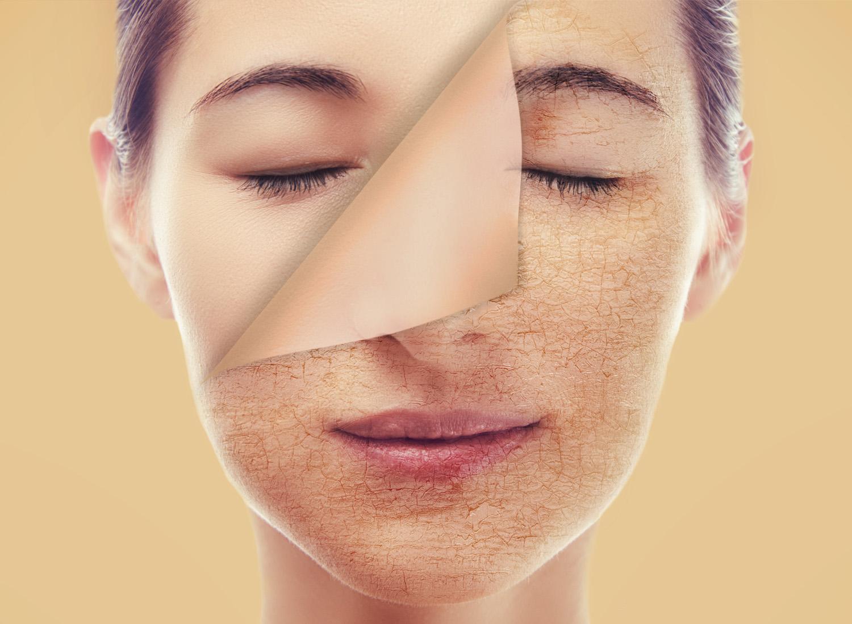 Da bị lão hóa trở nên xấu đi chính là dấu hiệu của thiếu hụt nội tiết tố nữ