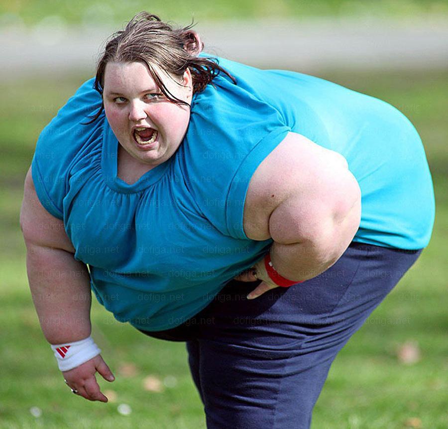Người thừa cân, béo phì khiến cột sống chịu nhiều áp lực, đĩa đệm nhanh bị tổn thương