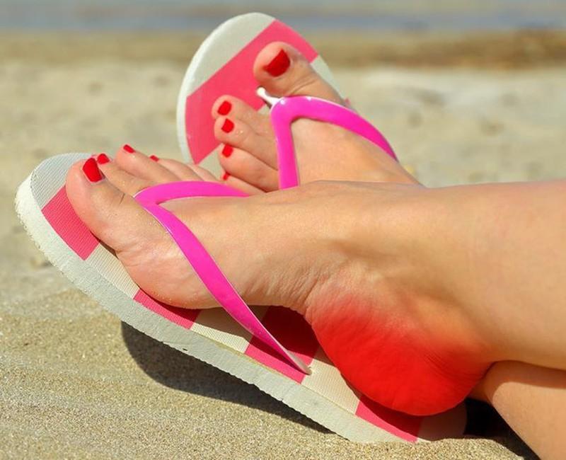 Dép xỏ ngón có thể gây áp lực đáng kể đối với gót chân