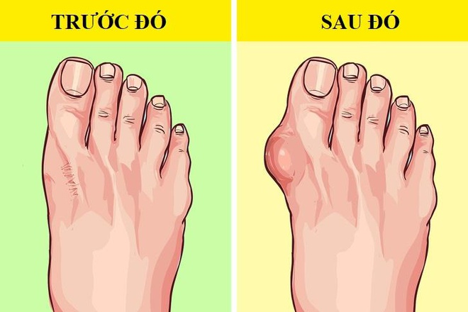 Dép xỏ ngón có thể gây đau, viêm cho chân