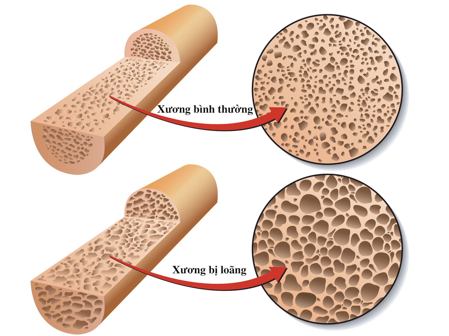 Loãng xương là rối loạn chuyển hóa của bộ xương