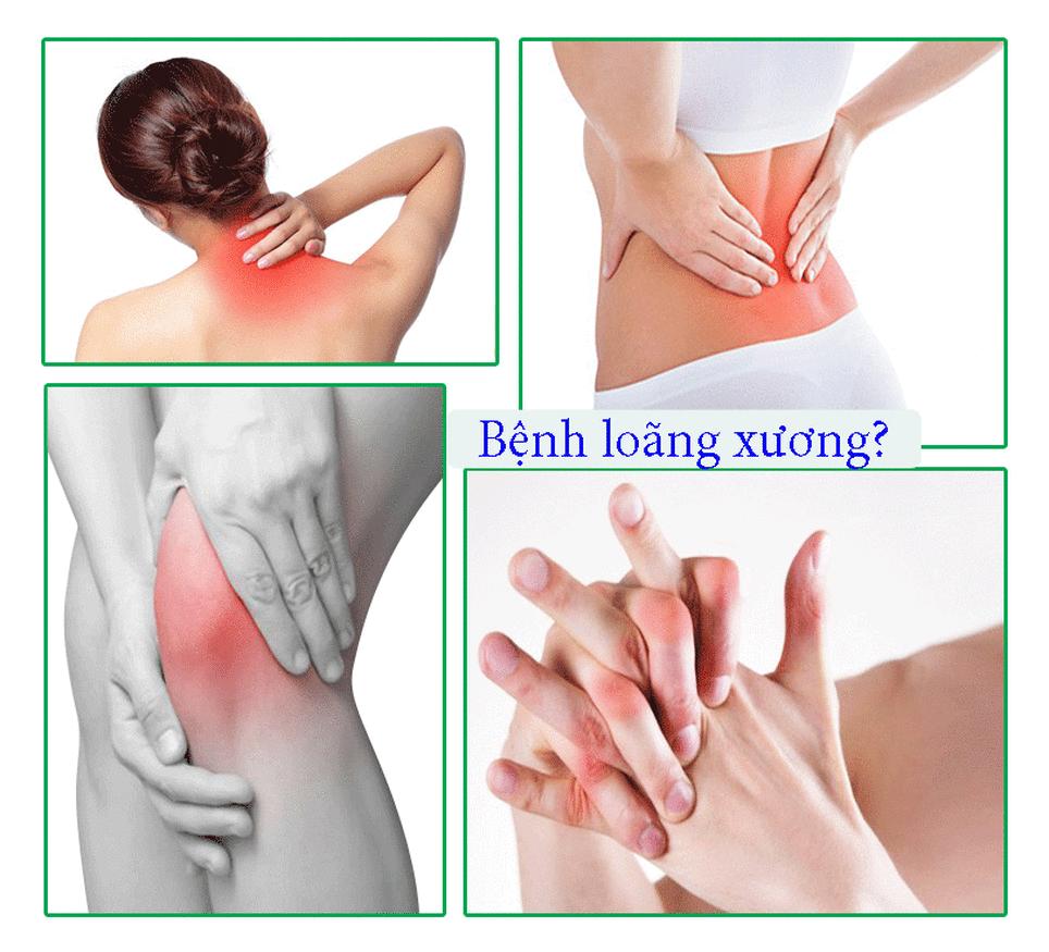 Triệu chứng của bệnh loãng xường thường đau mỏi người không rõ ràng, giảm dần chiều cao, gù vẹo cột sống